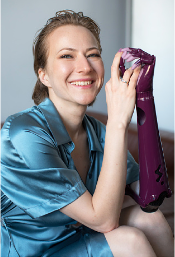A woman with a prosthetic arm smiling at the camera.